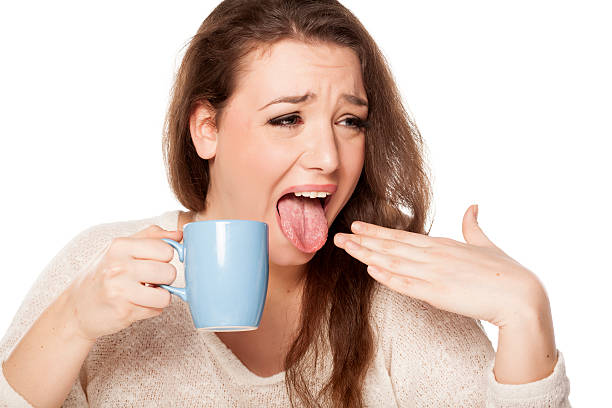 How is oral burns and how to treat oral burns