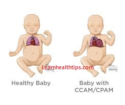 How is pulmonary hypoplasia diagnosed in children and infants